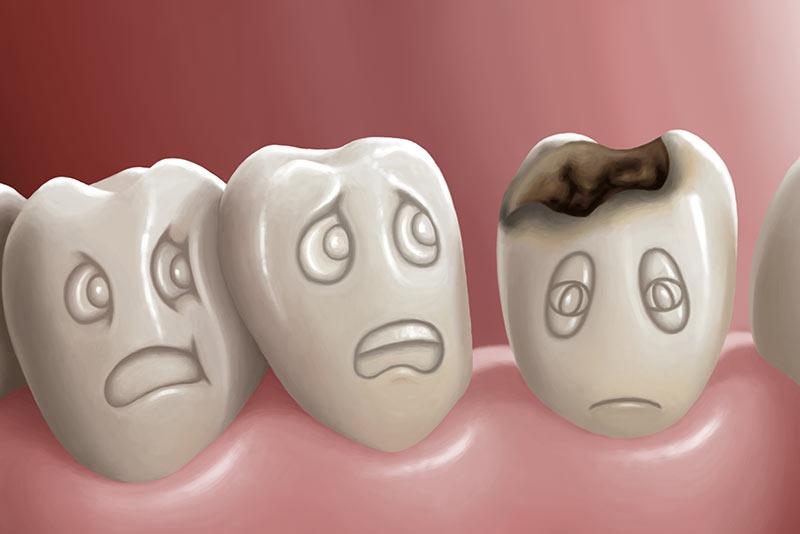 Diş Çürümesi ve Dolgular